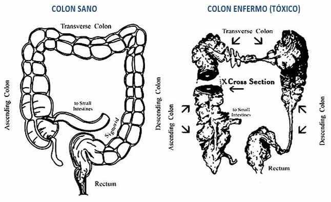 colon-103