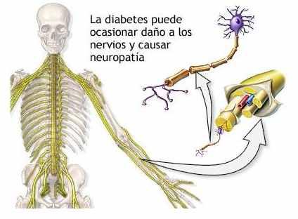 diabetes-3