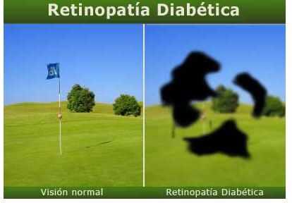 diabetes-4